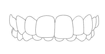 ฟันบนยื่นคร่อมฟัน ล่าง