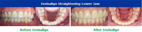 ภาพตัวอย่างการรักษา Invisalign