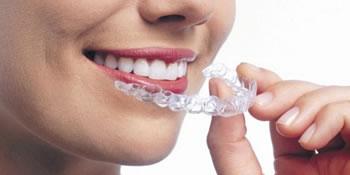 จัดฟันแพงไหม