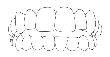 ฟันบนกับฟันล่างไม่สบกันเมื่อขบฟัน