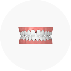 ปัญหาเรื่องฟัน